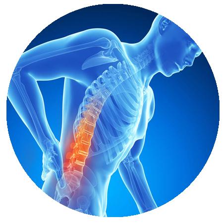 Back Pain PNG Picture SVG Clip arts