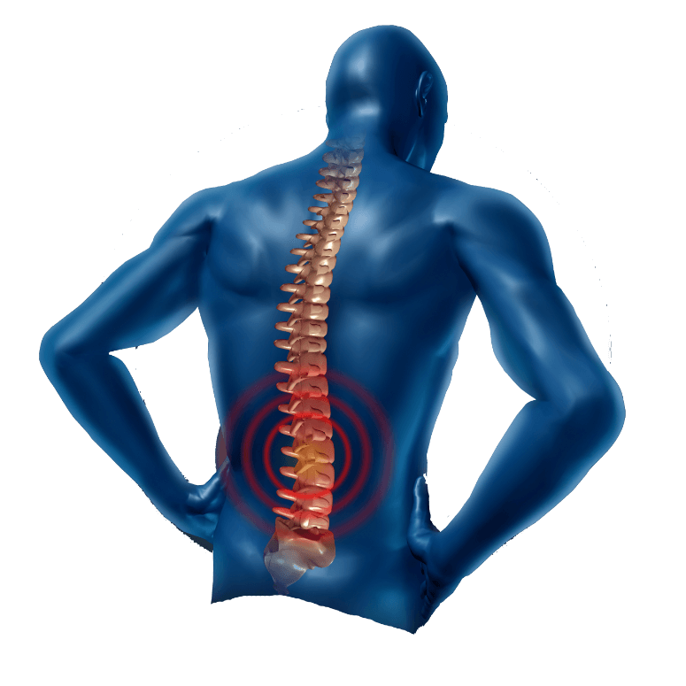 Back Pain Transparent PNG SVG Clip arts
