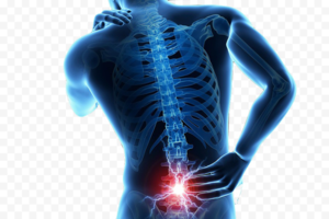Back Pain PNG Transparent PNG Clip art