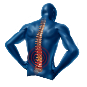 Back Pain Transparent PNG PNG Clip art